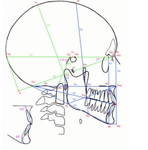 Schéma d'une analyse cephalométrique de Delaire - Dr Chardain