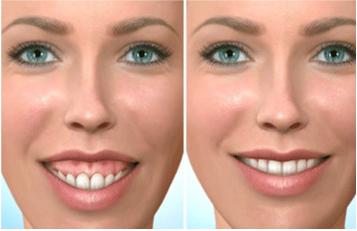 Sourire « gingival » pour découvrement incisif normal - Dr Chardain Nogent-sur-Marne