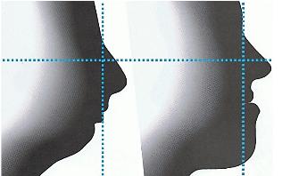 Profil cis-frontal et profil trans-frontal - Dr Chardain Nogent-sur-Marne