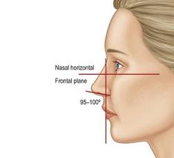 Schéma de l'angle naso-labial pour traitement des traumatismes faciaux - Dr Chardain