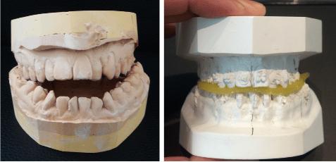 Moulage dentaire pour évaluer l'occlusion et l'opérabilité - Dr Chardain Nogent-sur-Marne