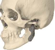 Prothèse totale d'ATM pour arthrose terminale - Dr Chardain Nogent-sur-Marne