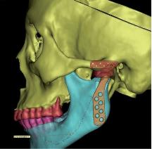 Prothèse totale d'ATM pour arthrose terminale 2 - Dr Chardain Nogent-sur-Marne