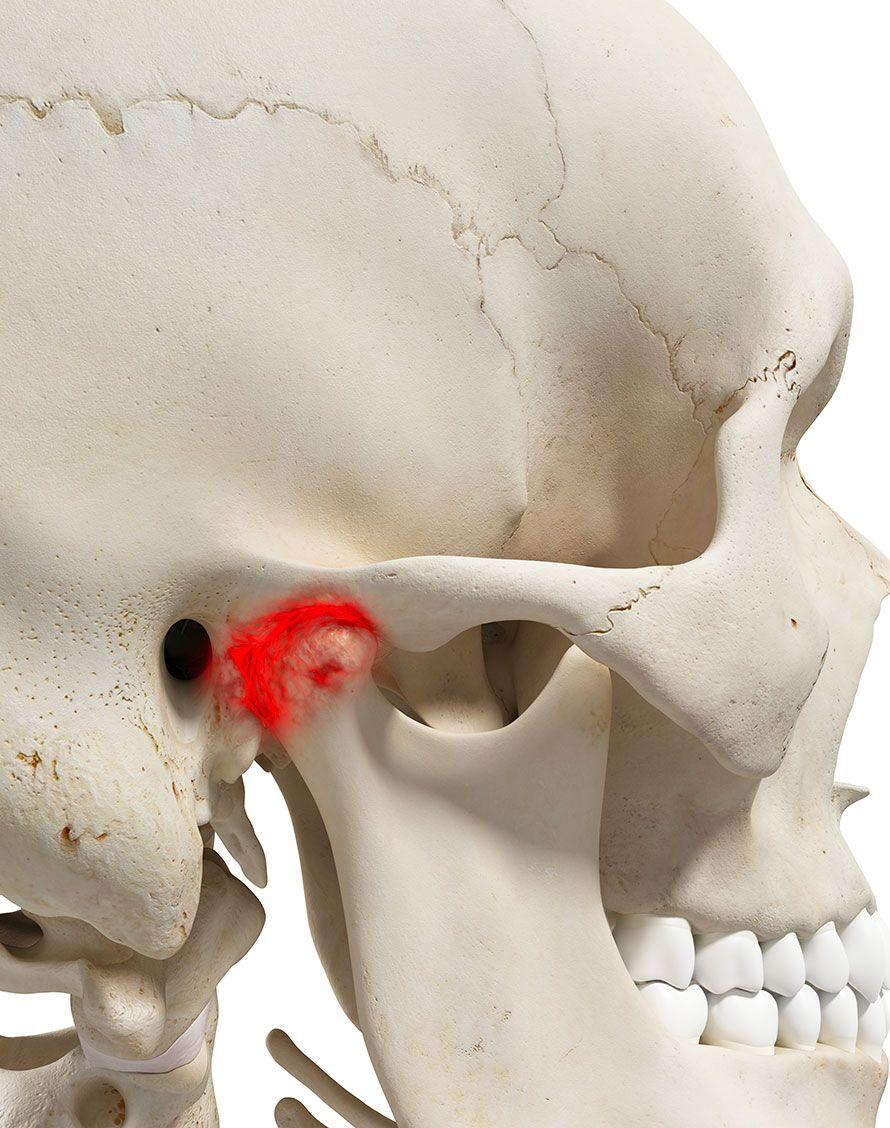 Articulation temporo mandibulaire pour blocages de la mâchoire - Dr Chardain