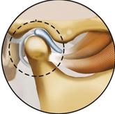 Ménisque cartilagineux pour traitement d'articulation temporo mandibulaire
