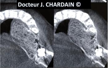 Radio d'un Torus mandibulaire - Dr Chardain Nogent-sur-Marne