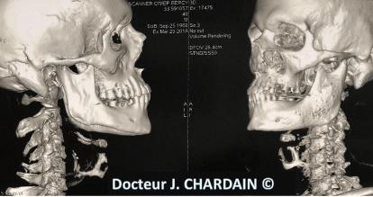 Dysplasie fibreuse du ramus mandibulaire gauche - Dr Chardain Nogent-sur-Marne