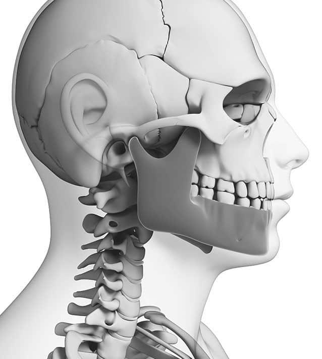 Squelette de tête pour chirurgie correctrice de la machoire - Dr Chardain Nogent-sur-Marne