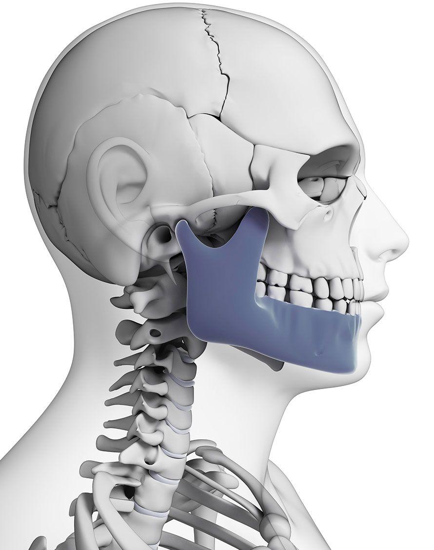 Schéma de machoire pour chirurgie correctrice de la machoire - Dr Chardain Nogent-sur-Marne
