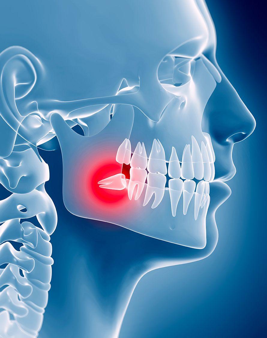 Chirurgie dents de sagesse en pratique dr Chardain Nogent-sur-Marne