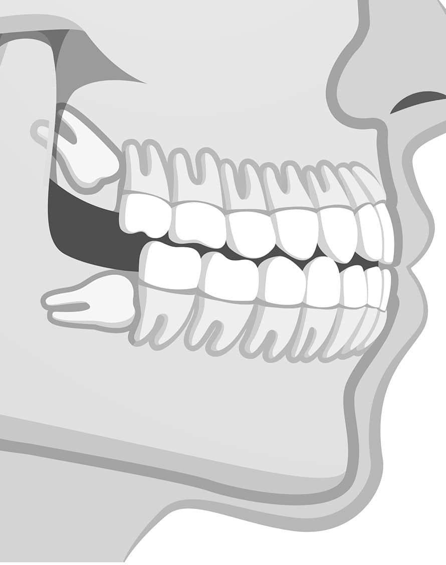 chirurgie des dents de sagesse à Nogent-sur-Marne : Schéma de machoire - Dr Chardain