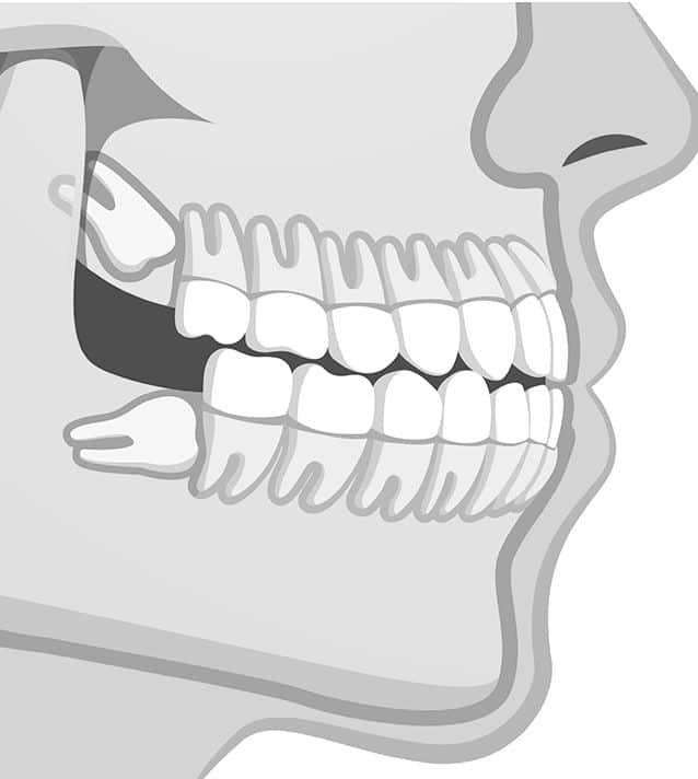 Schéma de machoire pour chirurgie des dents de sagesse - Dr Chardain Nogent-sur-Marne
