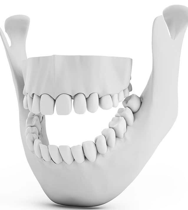 Chirurgie des lesions osseuses des machoires - Dr Chardain Nogent-sur-Marne