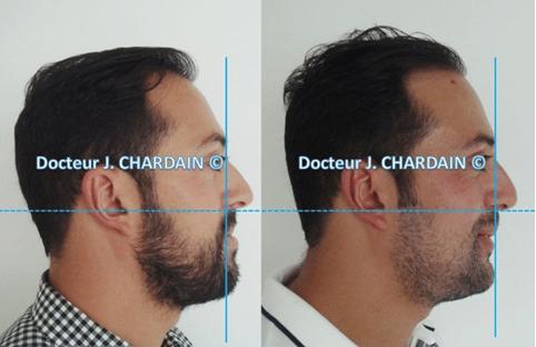 Profil facial d'un patient prognathe pour correction de la mâchoire - Dr Cahrdain Nogent-sur-Marne