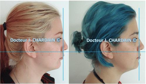 Profil facial d'une patiente avec classe II squelettique - Dr Chardain Nogent-sur-Marne