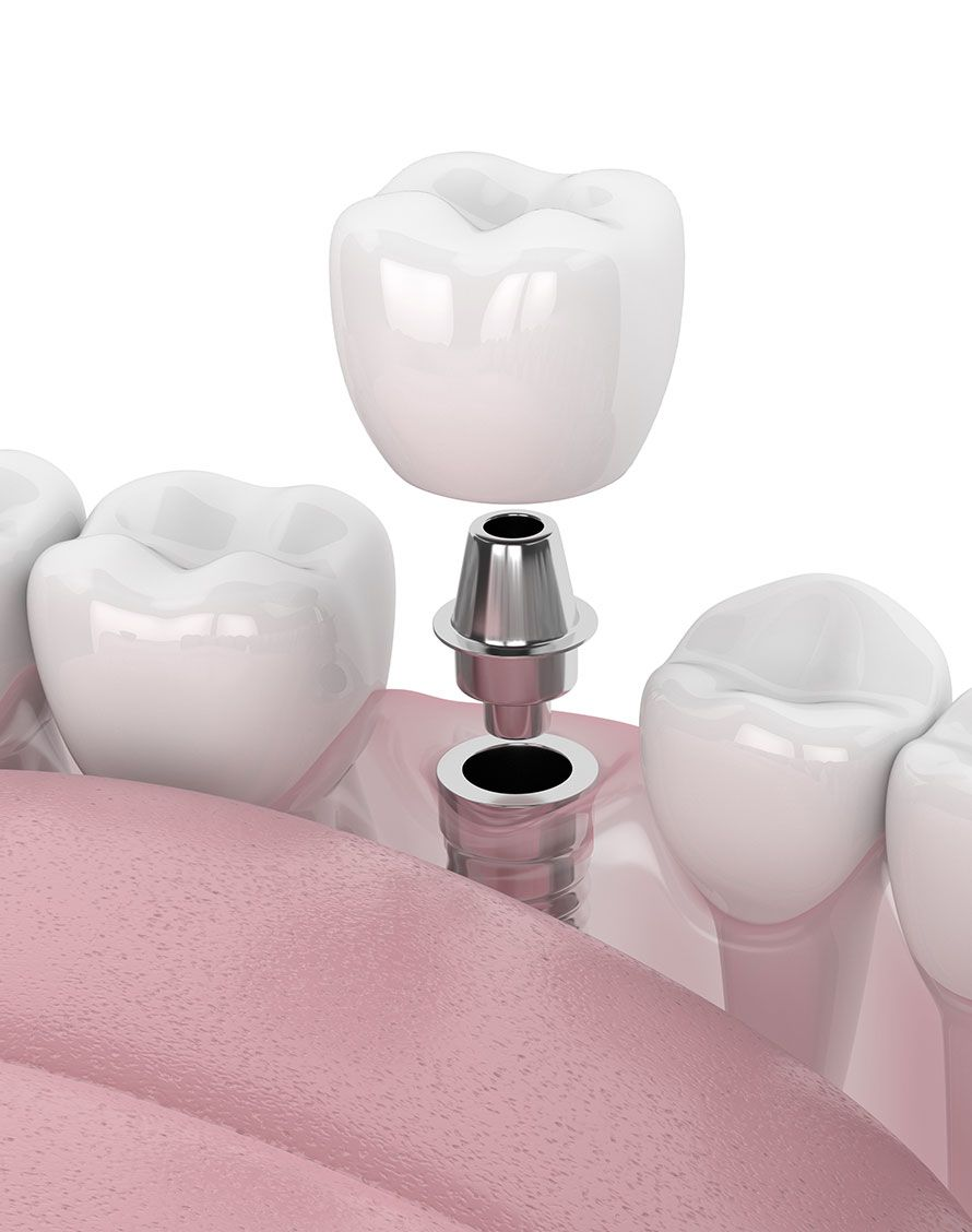 Implants dentaires pour chirurgie implantaire - Dr Chardain Nogent-sur-Marne