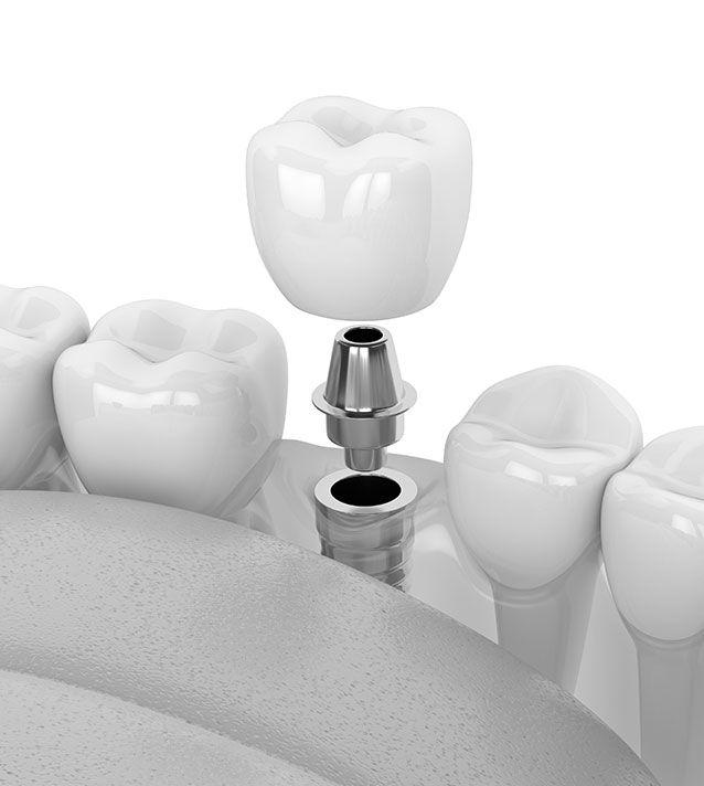 Implants dentaires en chirurgie implantaire - Dr Chardain Nogent-sur-Marne