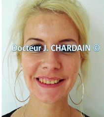 Exces hauteur gingivale, Dr chardain sur Nogent sur Marne