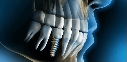 Schéma d'un implant dentaire - Dr Chardain Nogent-sur-Marne