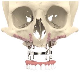 L'implantologie basale pour chirurgie implantaire et greffes osseuses à Nogent-sur-Marne - Dr Chardain