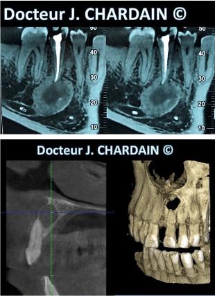 Radio de Kyste infectieux mandibulaire et Kyste infectieux maxillaire à Nogent-sur-Marne - Dr Chardain