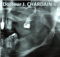Radio d'une Kératokyste mandibulaire - Dr Chardain Nogent-sur-Marne