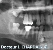 Radio d'une Hamartomes mandibulaires - Dr Chardain Nogent-sur-Marne