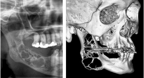 Aspect radiologique et scannographique d'une améloblastome mandibulaire - Dr Chardain