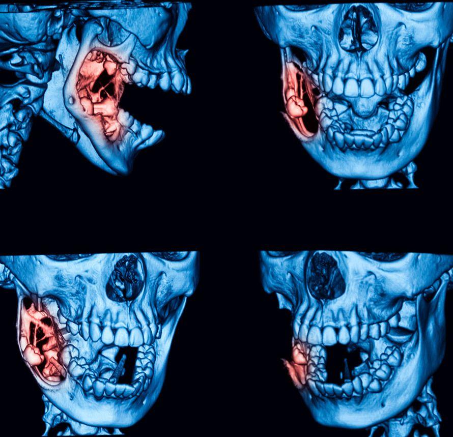 Kystes tumeurs des machoire, Dr chardain sur Nogent sur Marne
