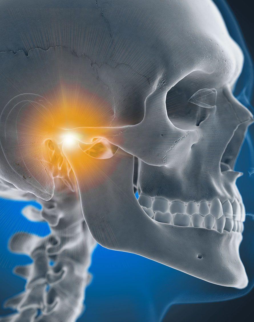 Pathologies de l'articulation temporo-mandibulaire - Dr Chardain Nogent-sur-Marne