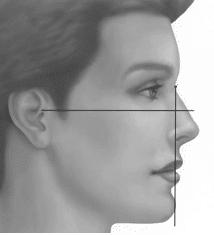 Illustration d'un profil ortho-frontal - Dr Chardain Nogent-sur-Marne