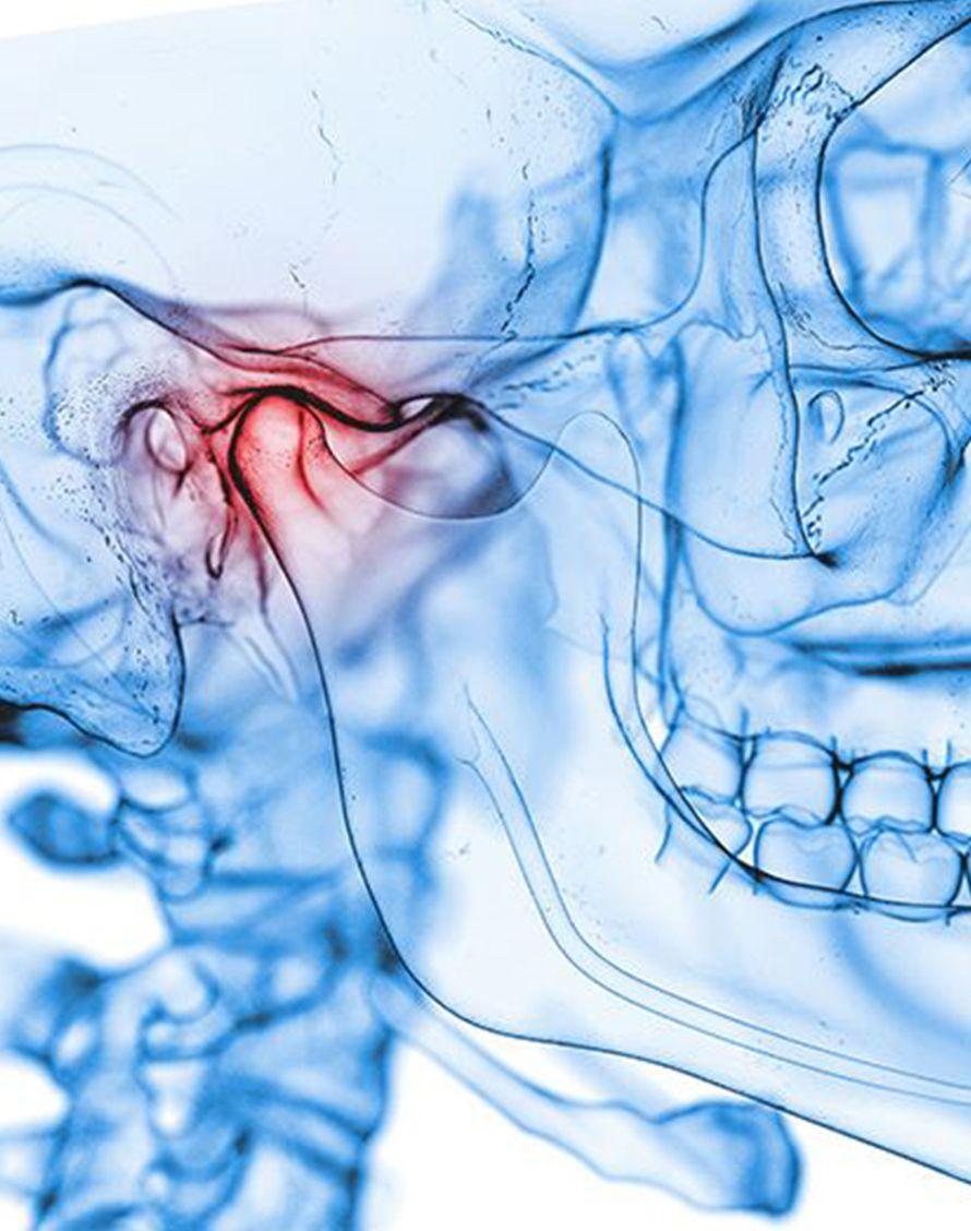 Stratégie thérapeutique pour l'articulation temporo-mandibulaire - Dr Chardain