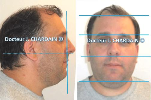 Patient avec une béance d'origine fonctionnelle - Dr Chardain Nogent-sur-Marne