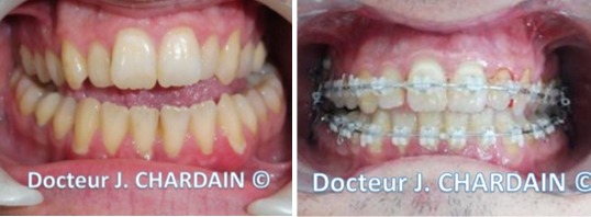 Patient après une béance d'origine fonctionnelle - Dr Chardain Nogent-sur-Marne