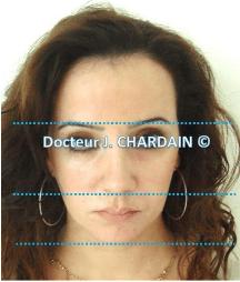 Patiente avec avec une Hyperdivergence - Dr Chardain Nogent-sur-Marne