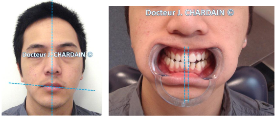Patiente avec avec une Asymétrie faciale - Dr Chardain Nogent-sur-Marne