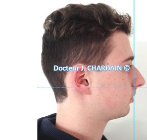 Patient avec un profil cis-frontal - Dr Chardain Nogent-sur-Marne