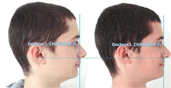 Patient avec une classe II squelettique - Dr Chardain Nogent-sur-Marne