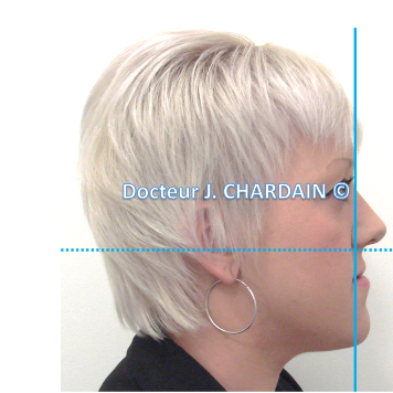 Patient avec une classe III squelettique - Dr Chardain Nogent-sur-Marne