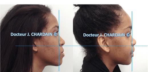 Patient avec une classe III squelettique hyperdivergente - Dr Chardain Nogent-sur-Marne