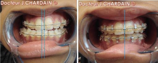 Dents d'un patient avec une classe II squelettique - Dr Chardain Nogent-sur-Marne