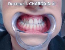 Patient avec une endognathie maxillaire - Dr Chardain Nogent-sur-Marne