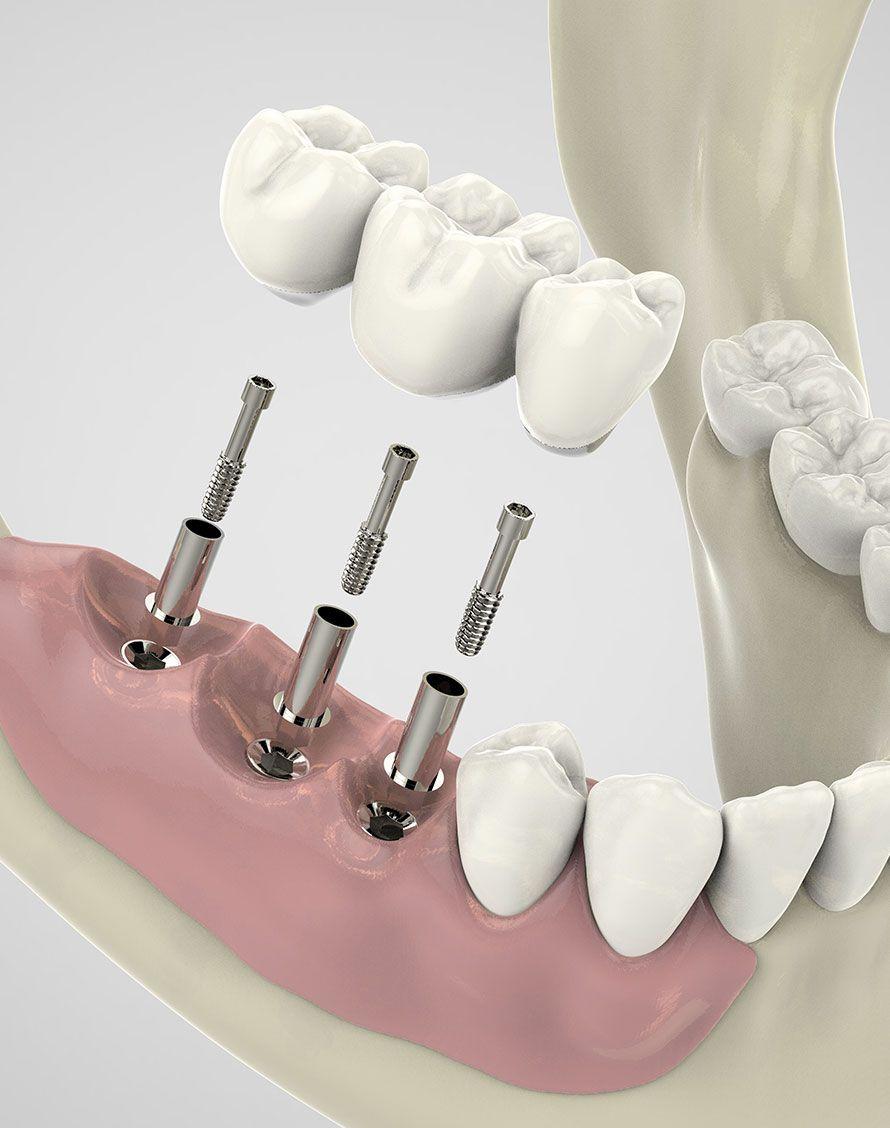 Pose d'implants dentaires pour chirurgie implantaire - Dr Chardain à Nogent-sur-Marne