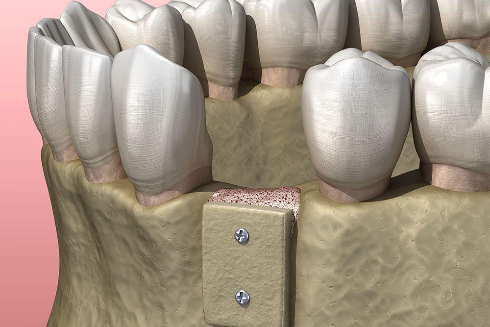 Matériaux de comblement pour greffes osseuses | Dr Chardain