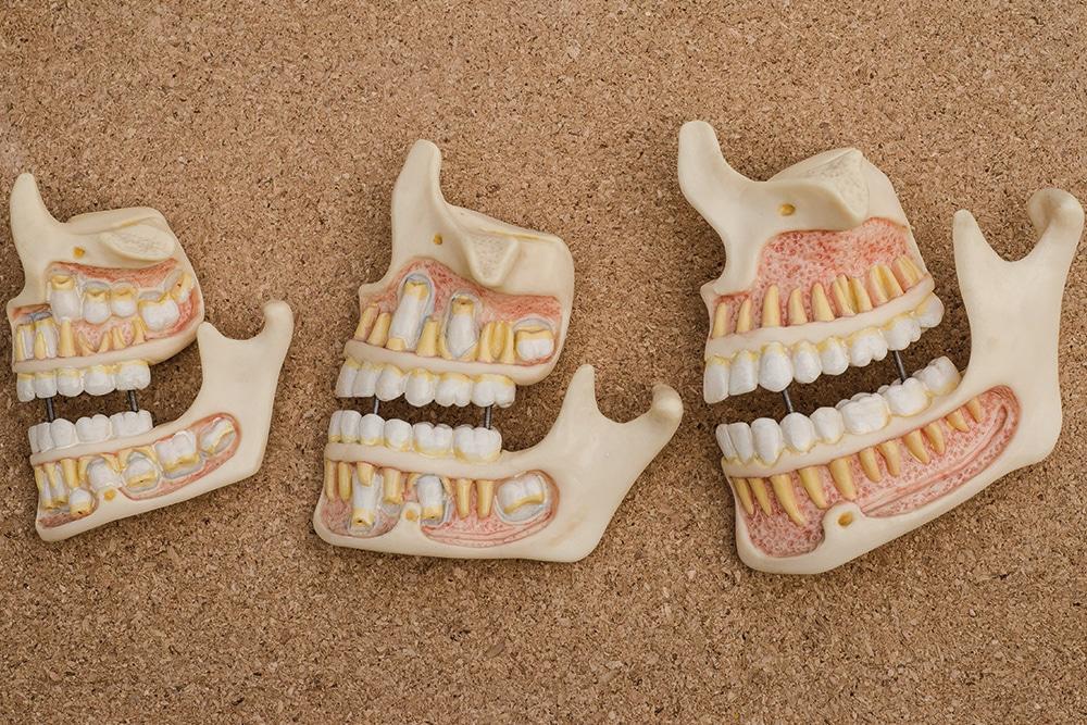 Indications et objectifs de la chirurgie orthognatique | Dr Chardain