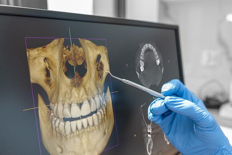Qu'est ce que la chirurgie orthognathique guidée aussi appelée chirurgie correctrice des mâchoires ?| Dr Chardain