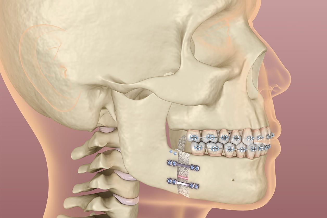 Qu'est-ce qu'une ostéotomie mandibulaire ? - Dr Chardain